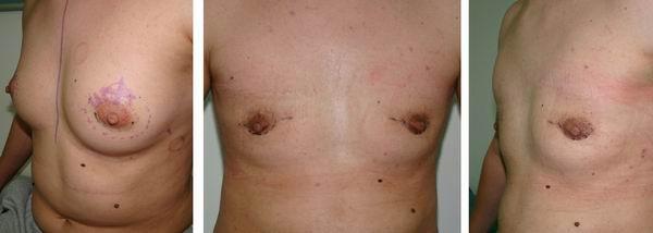 Trans – operacija v osmih korakih